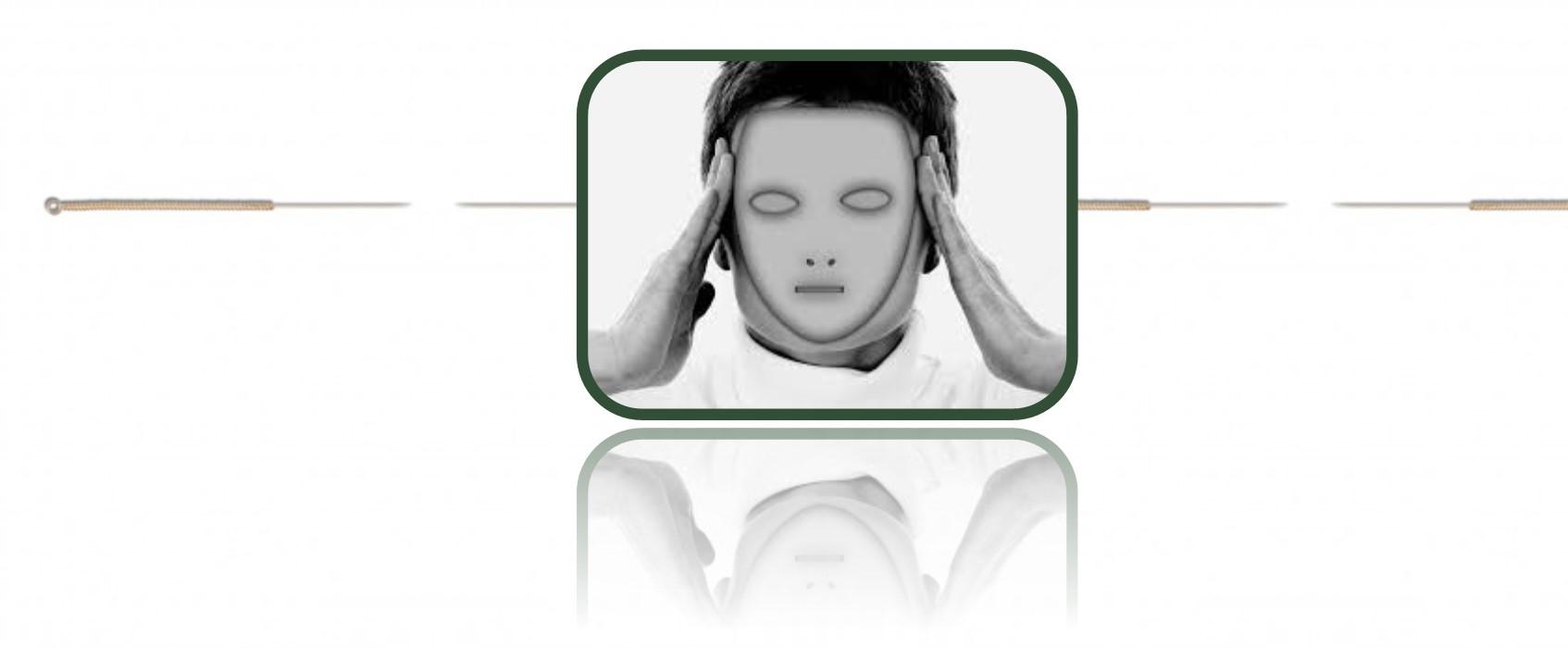 cefalea y acupuntura