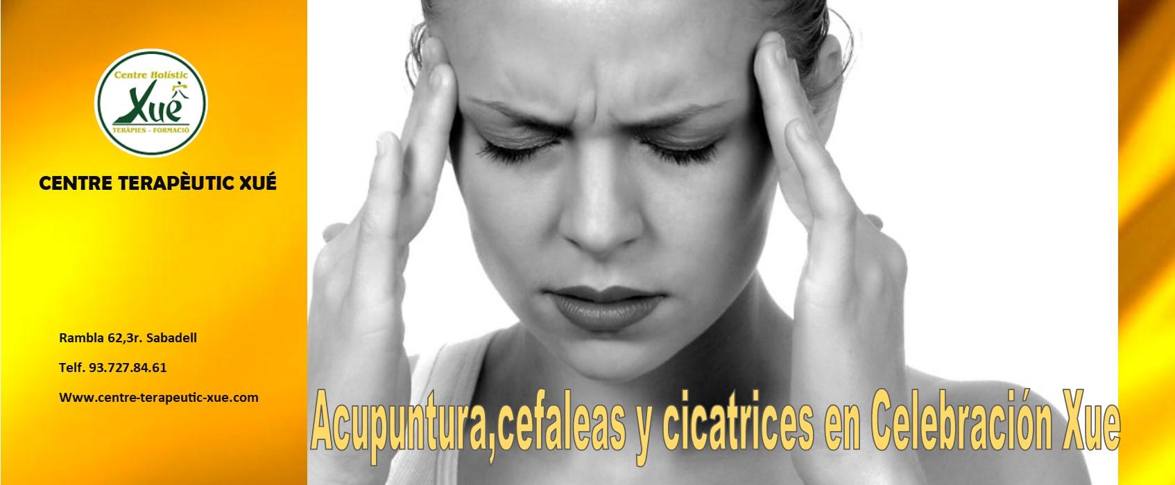 acupuntura cefalea cicatriz